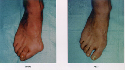 before and after bunion surgury